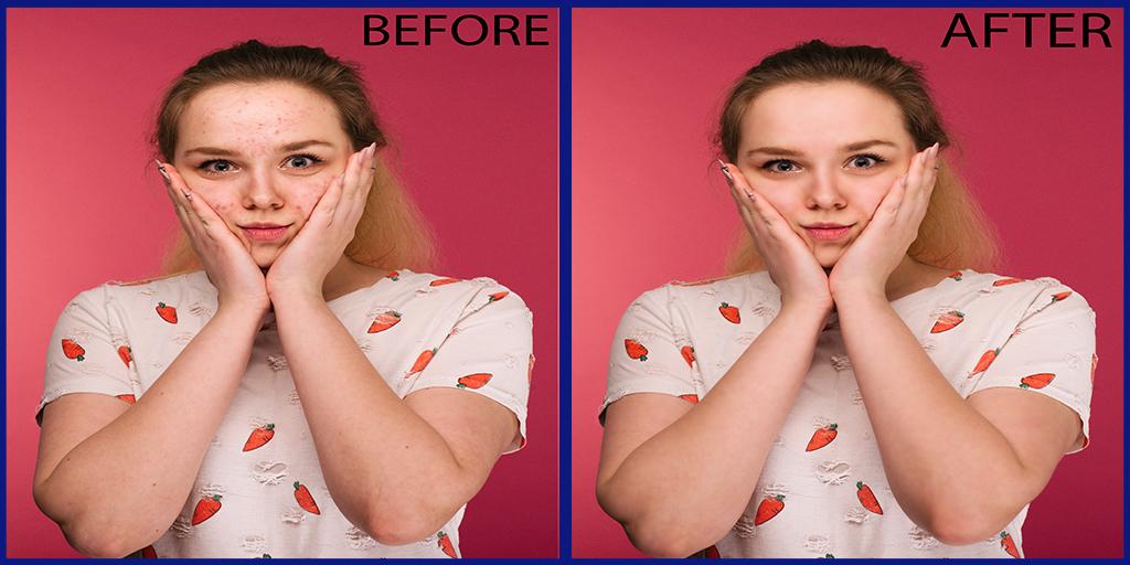 SRG Image Masking